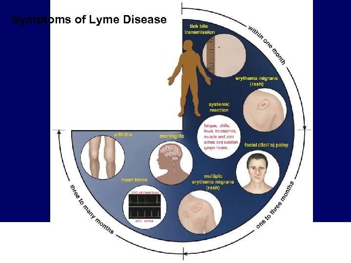 Symptoms of Lyme Disease