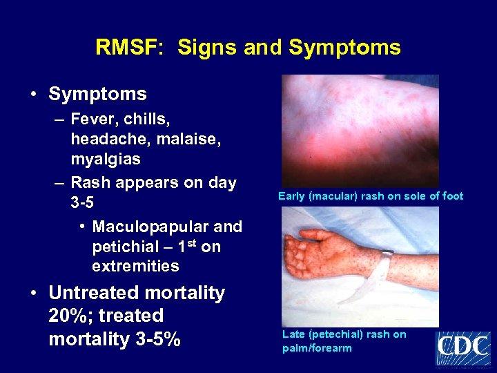 RMSF: Signs and Symptoms • Symptoms – Fever, chills, headache, malaise, myalgias – Rash
