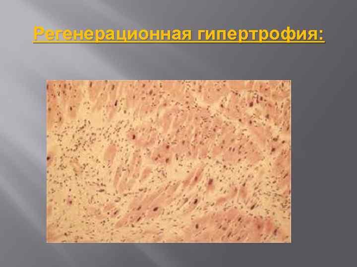 Регенерационная гипертрофия: