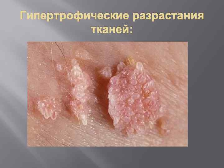 Гипертрофические разрастания тканей: