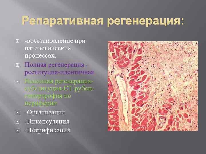 Репаративная регенерация: -восстановление при патологических процессах. Полная регенерация – реституция-идентичная Неполная регенерациясубституция-СТ-рубецгипертрофия по периферии
