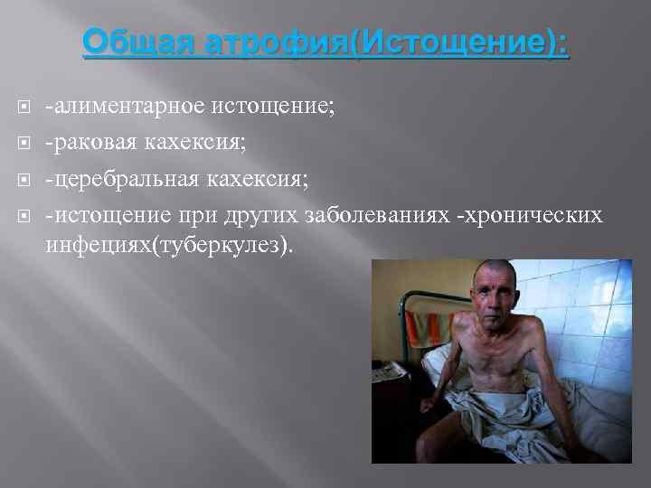 Общая атрофия(Истощение): -алиментарное истощение; -раковая кахексия; -церебральная кахексия; -истощение при других заболеваниях -хронических инфециях(туберкулез).