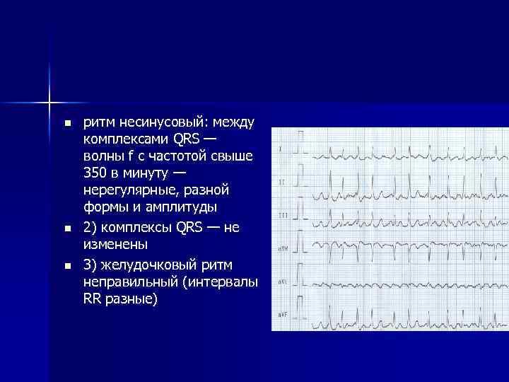 n n n ритм несинусовый: между комплексами QRS — волны f с частотой свыше