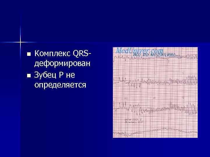 n n Комплекс QRS- деформирован Зубец Р не определяется