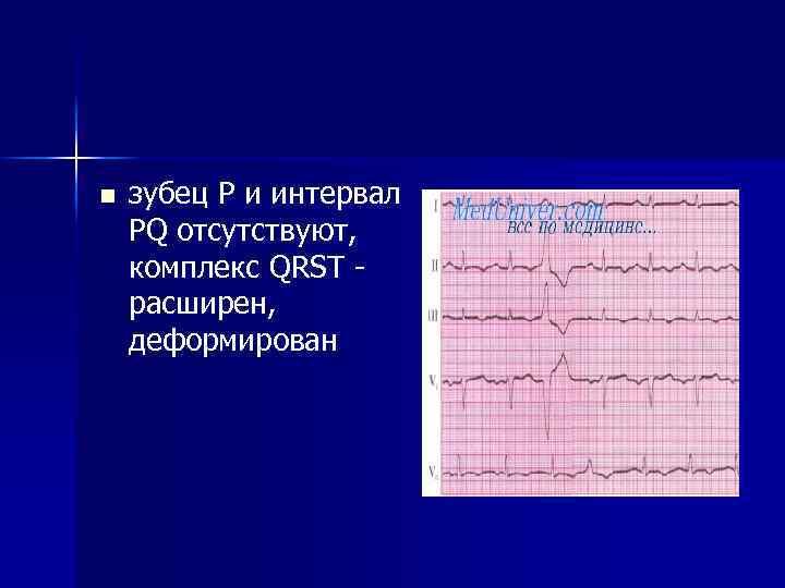 n зубец P и интервал PQ отсутствуют, комплекс QRST - расширен, деформирован