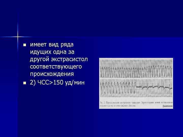 n n имеет вид ряда идущих одна за другой экстрасистол соответствующего происхождения 2) ЧСС>150