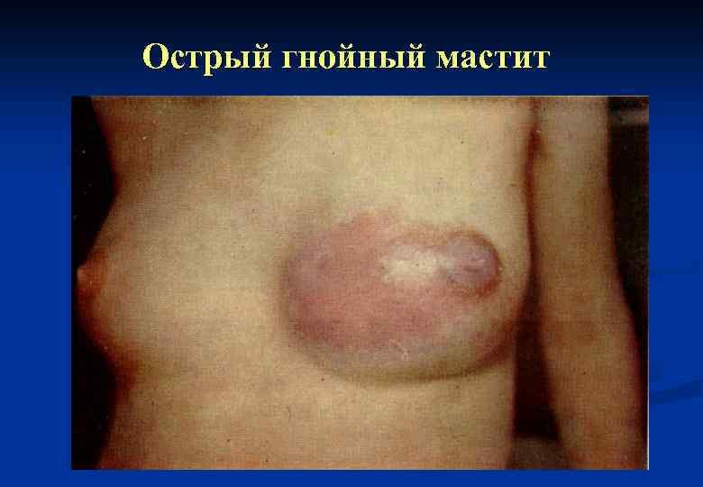 Заболевание молочных желез в картинках