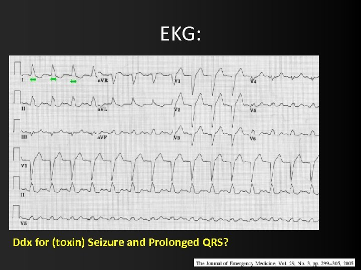 EKG: Ddx for (toxin) Seizure and Prolonged QRS?