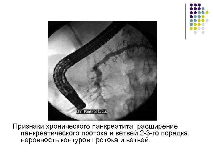 Признаки хронического панкреатита: расширение панкреатического протока и ветвей 2 -3 -го порядка, неровность контуров