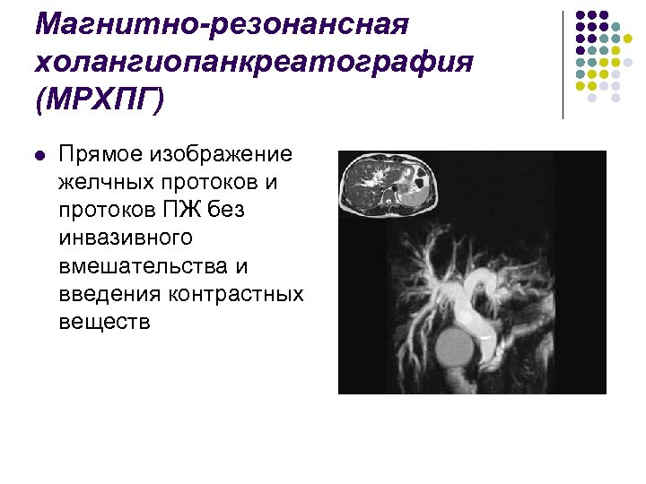 Магнитно-резонансная холангиопанкреатография (МРХПГ) l Прямое изображение желчных протоков и протоков ПЖ без инвазивного вмешательства