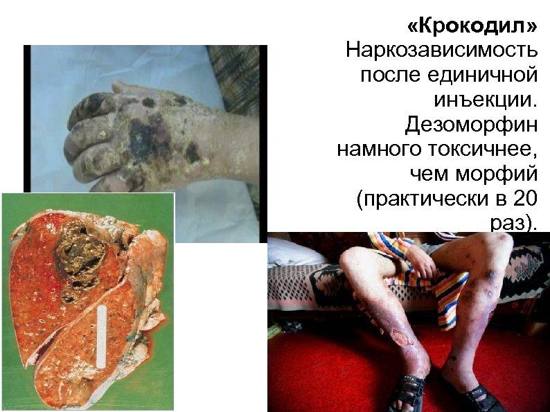 «Крокодил» Наркозависимость после единичной инъекции. Дезоморфин намного токсичнее, чем морфий (практически в 20