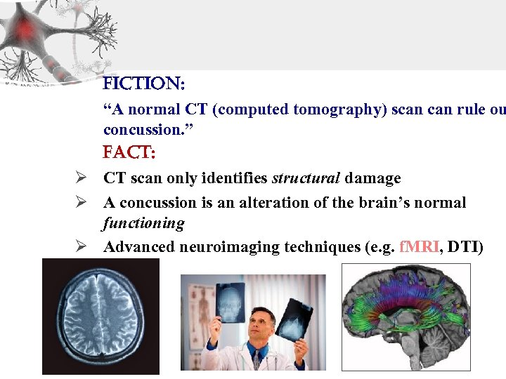 "Fiction: ""A normal CT (computed tomography) scan rule ou concussion. "" Fact: Ø CT"