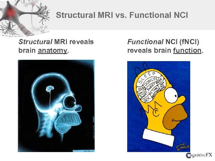 Structural MRI vs. Functional NCI Structural MRI reveals brain anatomy. Functional NCI (f. NCI)