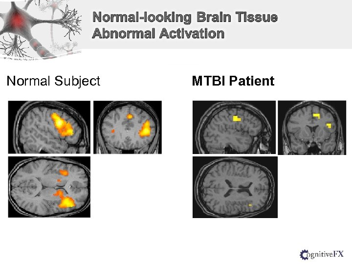 Normal Subject MTBI Patient