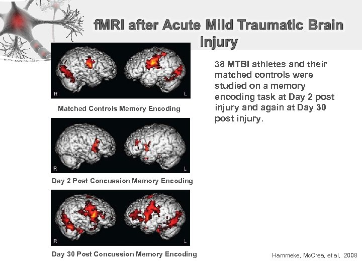 Matched Controls Memory Encoding 38 MTBI athletes and their matched controls were studied on