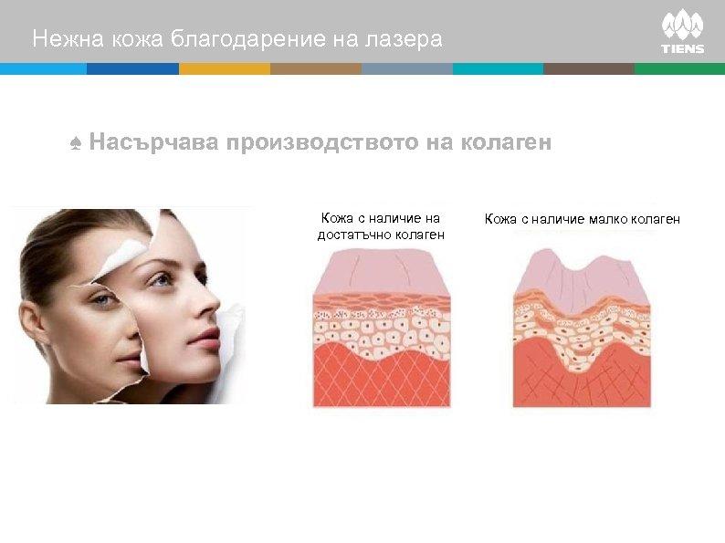 Нежна кожа благодарение на лазера ♠ Насърчава производството на колаген Кожа с наличие на