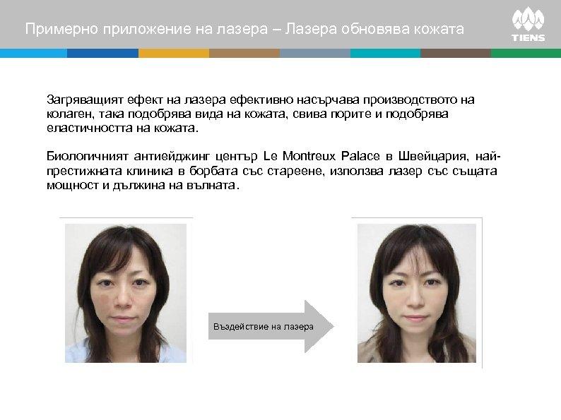 Примерно приложение на лазера – Лазера обновява кожата Загряващият ефект на лазера ефективно насърчава