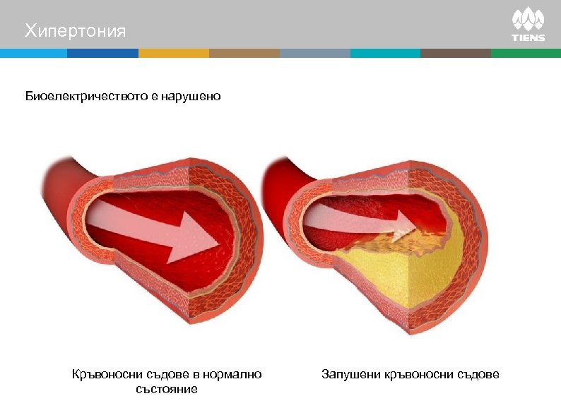 Хипертония Биоелектричеството е нарушено Кръвоносни съдове в нормално състояние Запушени кръвоносни съдове