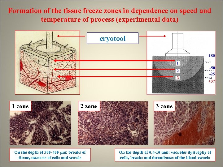 Formation of the tissue freeze zones in dependence on speed and temperature of process