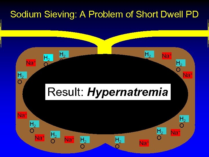 Sodium Sieving: A Problem of Short Dwell PD Na+ H 2 O Na+ H