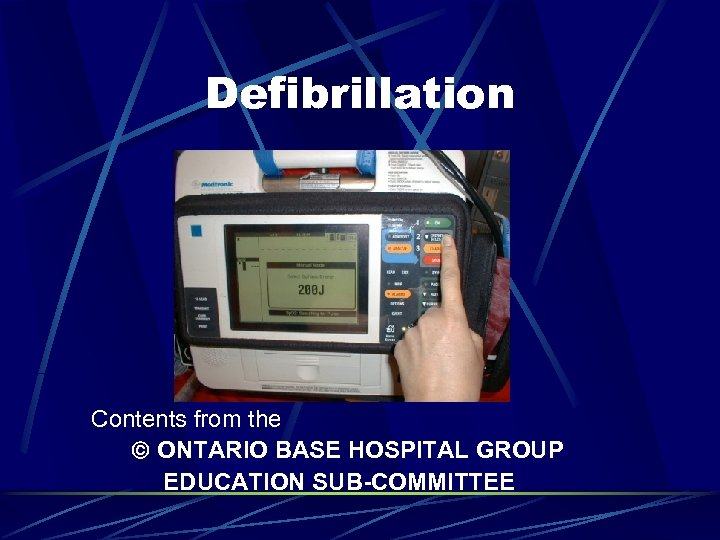 Defibrillation Contents from the ONTARIO BASE HOSPITAL GROUP EDUCATION SUB-COMMITTEE