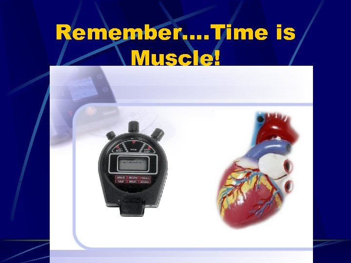 Remember…. Time is Muscle!