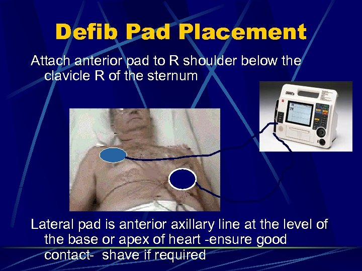 Defib Pad Placement Attach anterior pad to R shoulder below the clavicle R of