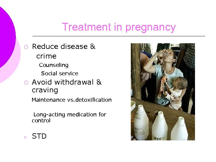 Treatment in pregnancy ¡ Reduce disease & crime Counseling Social service ¡ Avoid withdrawal
