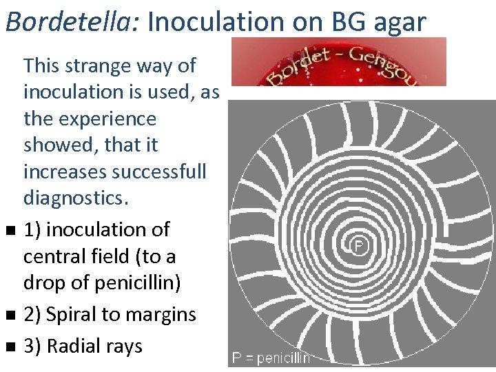 Bordetella: Inoculation on BG agar n n n This strange way of inoculation is