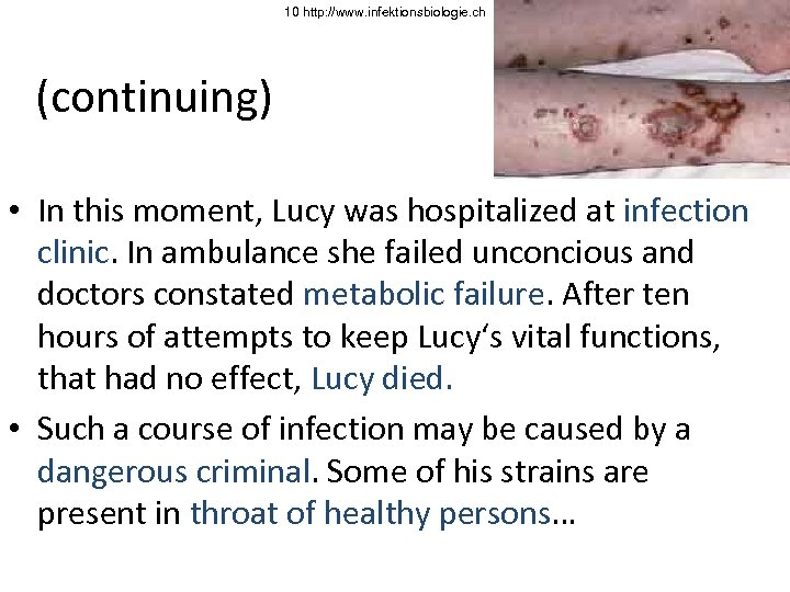 10 http: //www. infektionsbiologie. ch (continuing) • In this moment, Lucy was hospitalized at