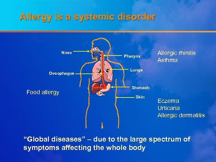 Allergy is a systemic disorder Nose Oesophagus Food allergy Pharynx Allergic rhinitis Asthma Lungs