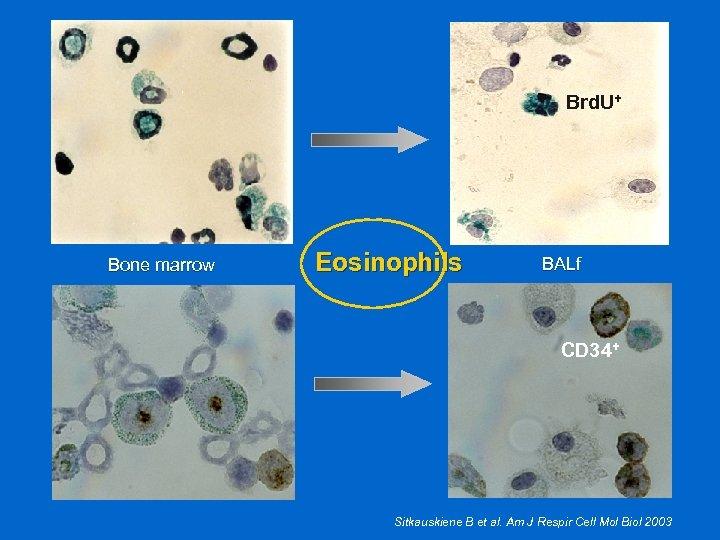 Brd. U+ Bone marrow Eosinophils BALf CD 34+ Sitkauskiene B et al. Am J