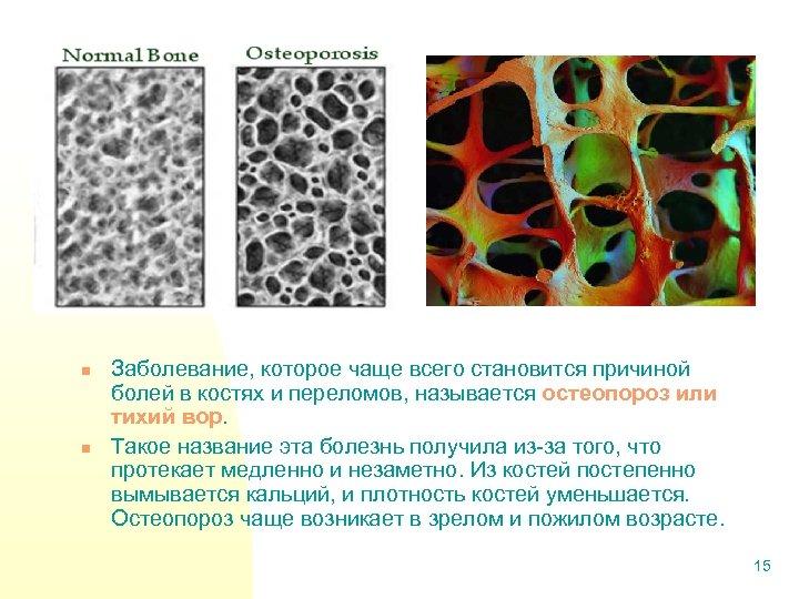 n n Заболевание, которое чаще всего становится причиной болей в костях и переломов, называется