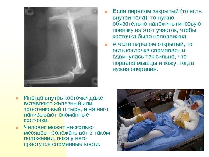 n n Иногда внутрь косточки даже вставляют железный или тростниковый штырь, и на него