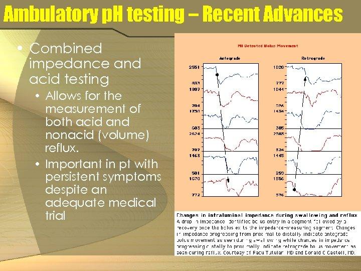 Ambulatory p. H testing – Recent Advances • Combined impedance and acid testing •