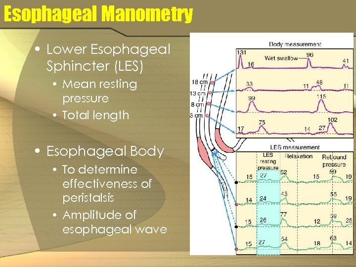 Esophageal Manometry • Lower Esophageal Sphincter (LES) • Mean resting pressure • Total length