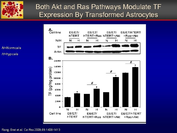 Both Akt and Ras Pathways Modulate TF Expression By Transformed Astrocytes N=Normoxia H=hypoxia Rong,