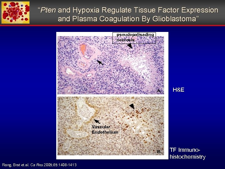 """""""Pten and Hypoxia Regulate Tissue Factor Expression and Plasma Coagulation By Glioblastoma"""" pseudopalisading necrosis"""