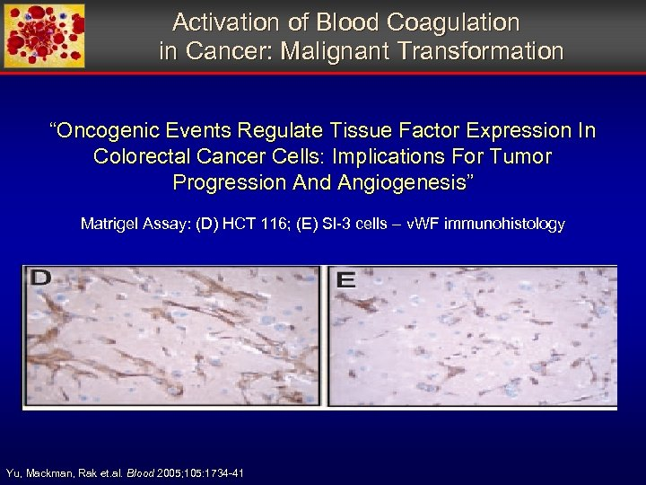 """Activation of Blood Coagulation in Cancer: Malignant Transformation """"Oncogenic Events Regulate Tissue Factor"""