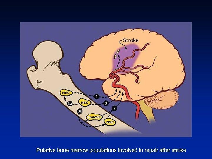 Putative bone marrow populations involved in repair after stroke