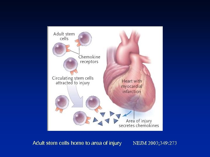 Adult stem cells home to area of injury NEJM 2003; 349: 273
