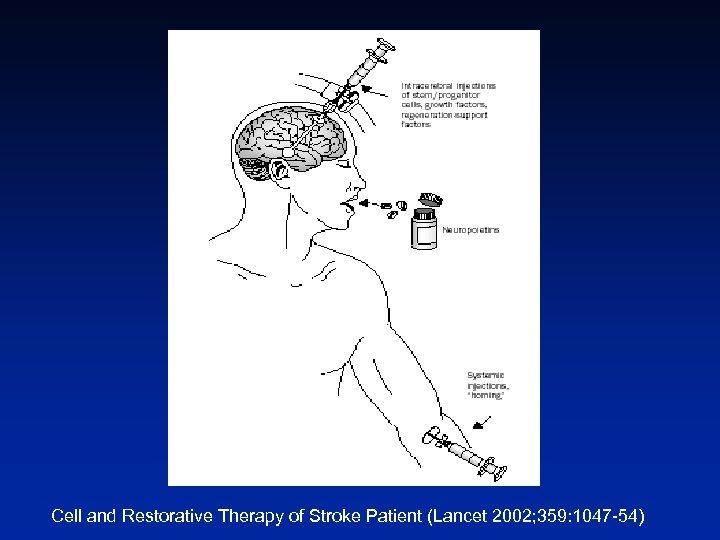 Cell and Restorative Therapy of Stroke Patient (Lancet 2002; 359: 1047 -54)