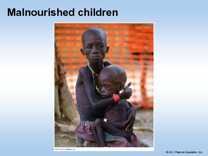 Malnourished children © 2011 Pearson Education, Inc.
