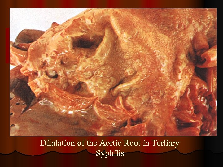 Dilatation of the Aortic Root in Tertiary Syphilis