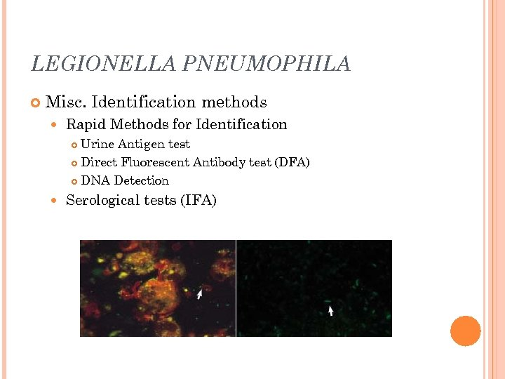 LEGIONELLA PNEUMOPHILA Misc. Identification methods Rapid Methods for Identification Urine Antigen test Direct Fluorescent