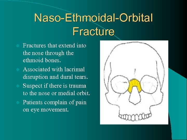Naso-Ethmoidal-Orbital Fractures that extend into the nose through the ethmoid bones. l Associated with