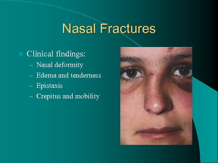 Nasal Fractures l Clinical findings: – Nasal deformity – Edema and tenderness – Epistaxis