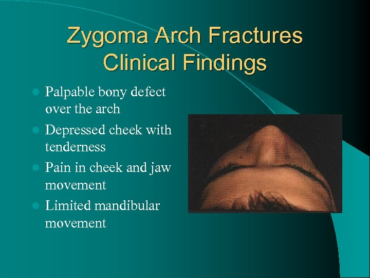 Zygoma Arch Fractures Clinical Findings Palpable bony defect over the arch l Depressed cheek