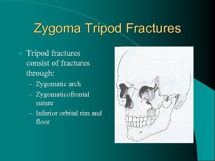 Zygoma Tripod Fractures l Tripod fractures consist of fractures through: – Zygomatic arch –