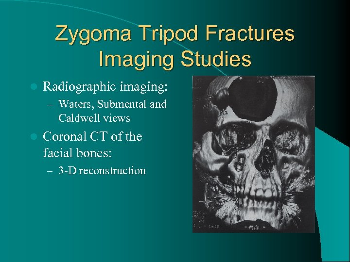 Zygoma Tripod Fractures Imaging Studies l Radiographic imaging: – Waters, Submental and Caldwell views